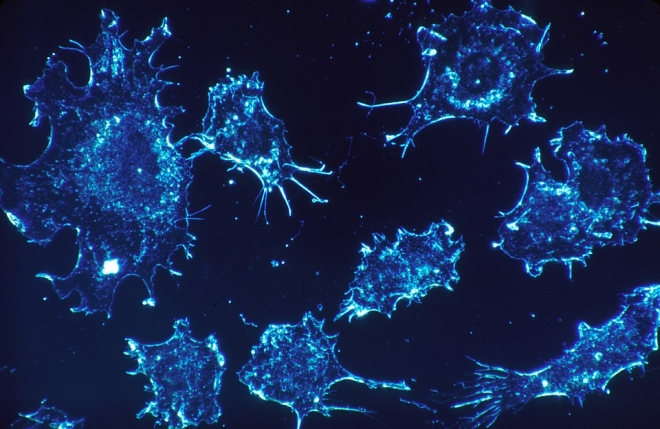 Biológiai drónokat vetnek be a rákos sejtek