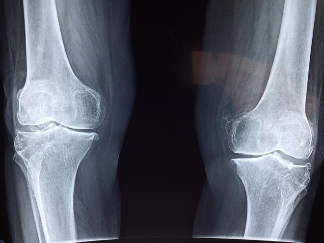 Tudnivalók a csontritkulásról