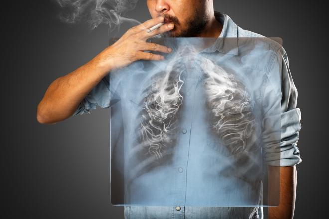 November – Nemzetközi Tüdőrák Hónap
