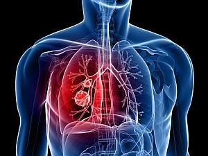 Megelőzés és korai diagnózis – így vehetjük fel a harcot a tüdőrákkal