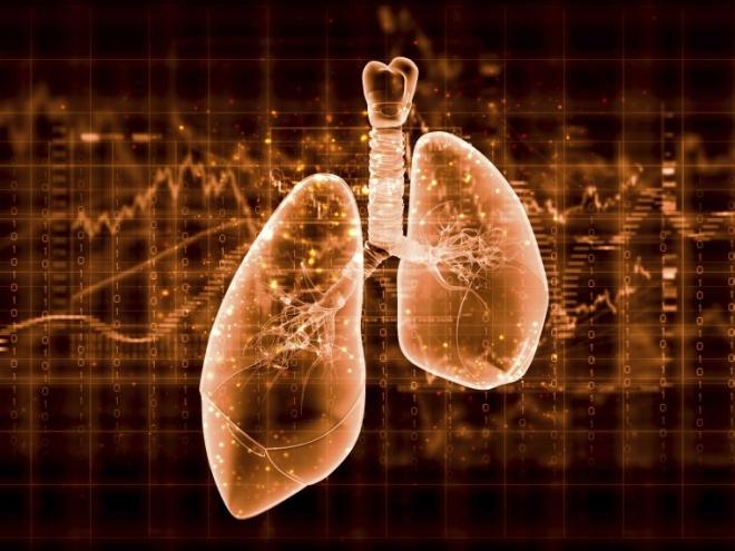 Alacsony dózisú CT-vel a tüdőrákkal szemben