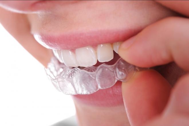 A legmodernebb fogszabályozási technikák