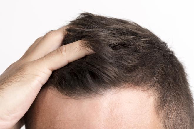 Miért hullik a férfiak haja?