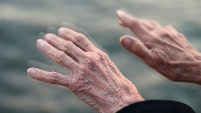 Parkinson-kór: mozgásfejlesztéssel javítható az életminőség