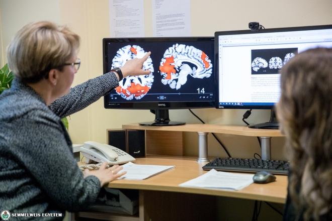 Számos ingerre érzékenyebbek a migrénesek