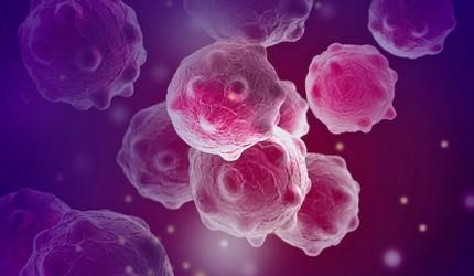 Szűrő- és önvizsgálattal a rákos megbetegedések harmada megelőzhető
