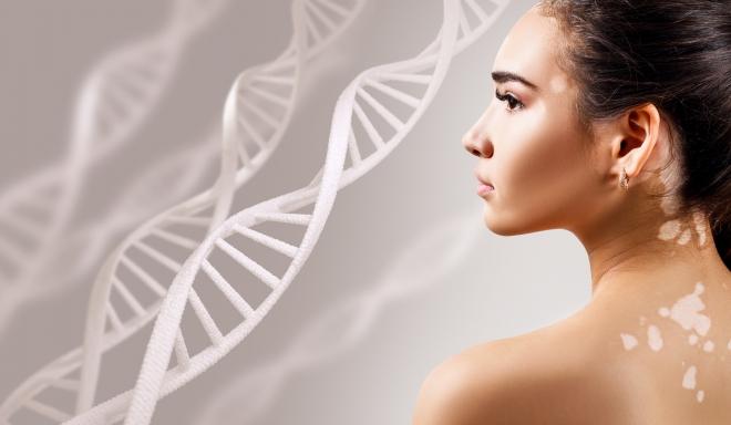 Fehér foltok a bőrön - hogyan halványítható a vitiligo?