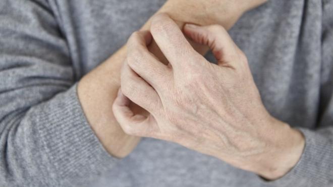 300 millió embert érintenek a ritka betegségek
