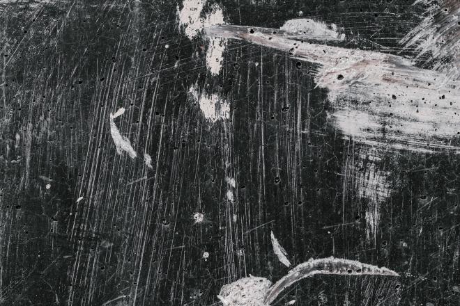 Mizofónia: van rosszabb hang a táblát karcoló körömnél