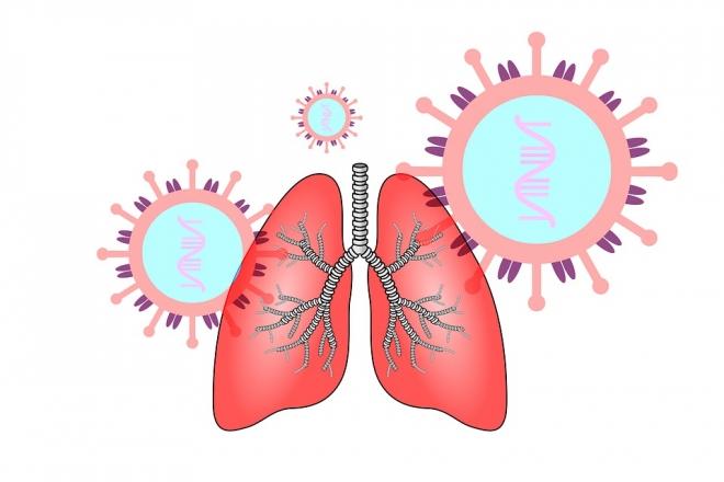 Ígéretesek az őssejtkezelések a koronavírus okozta tüdőgyulladás gyógyításában