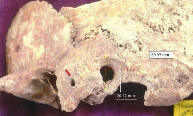 Bonyolult agyműtét nyomait fedezték fel egy kora középkori görög leletegyüttesen