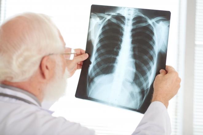 Ne csak járvány idején figyeljünk tüdőnk egészségére!