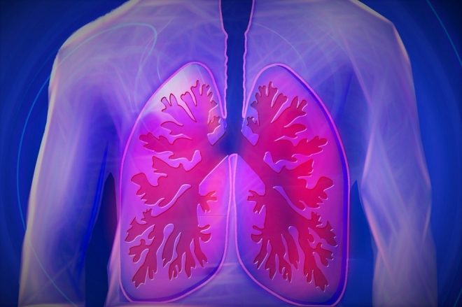 Mit kell tudni a tüdőgyulladásról?