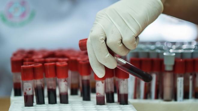 Mi történik vérvétel után?