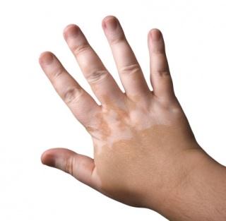 Fehér foltok a bőrön – Június 25. a vitiligo világnapja
