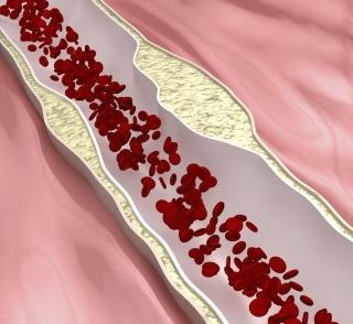 A helyes koleszterinszint beállítása