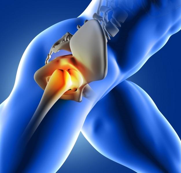 Előzzük meg a csípőprotézist, tartsuk karban ízületeinket!