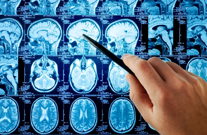 Különbségek a férfi és a női agy között