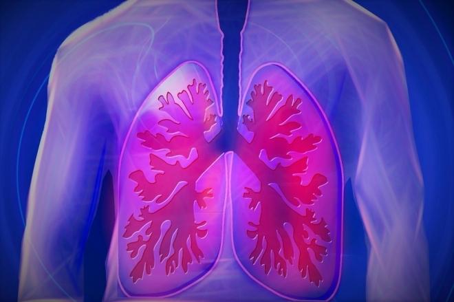 A mesterséges intelligencia képes észlelni a Covid19-betegséget a tüdőben