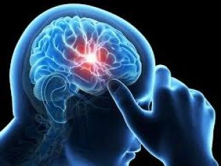 Akár stroke-ot is okozhat a koronavírus