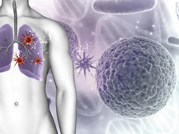 A koronavírusos eseteknél tovább tart a tüdőgyulladás