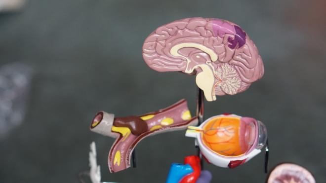 Az Alzheimer-kór három altípusát azonosították