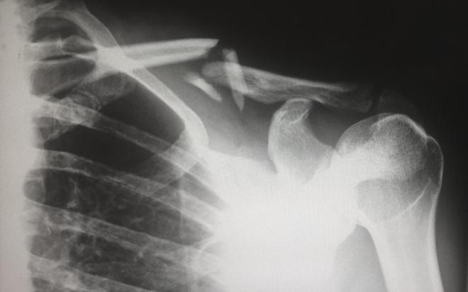 Szintetikus csonttal gyógyítanák a traumás sérüléseket