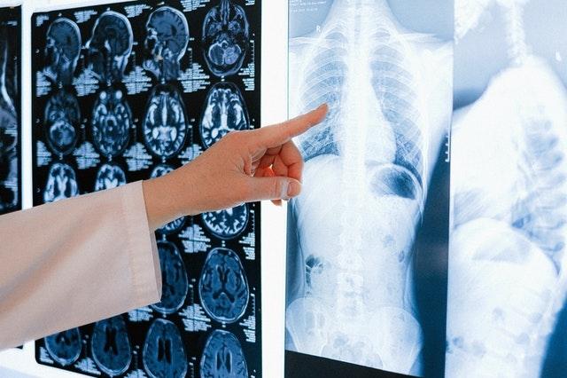 A hazai tüdőrák-szűrővizsgálat újabb szakasza