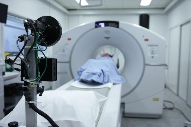 A tüdőrák korai stádiumban is szűrhető