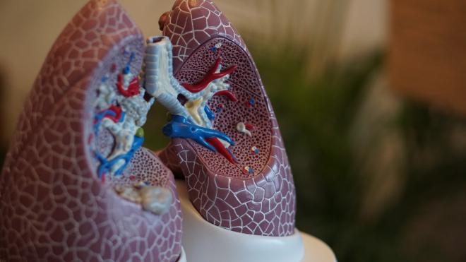 Kifejlesztették a TBC ellen az első biológiai kezelést