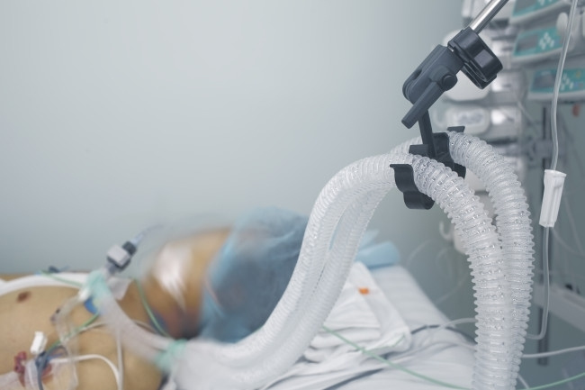 Egyre fiatalabbak szorulnak kórházi ellátásra