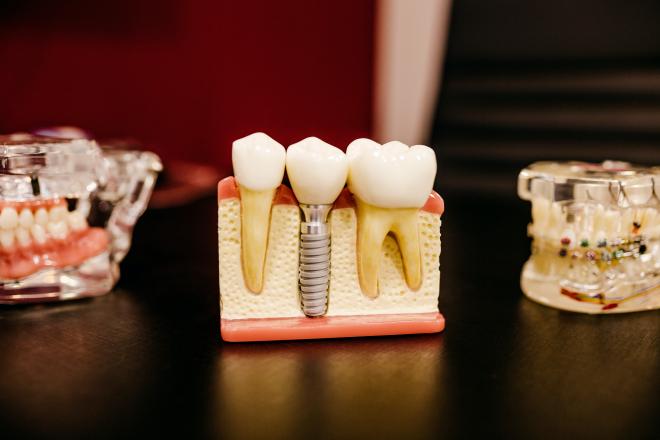 Modern fogászati implantátumot fejlesztettek ki