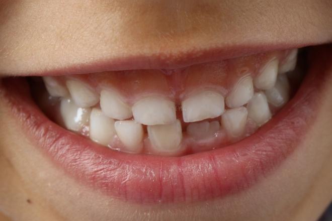 Súlyos betegség esetén is használható a mobil fogászati berendezés