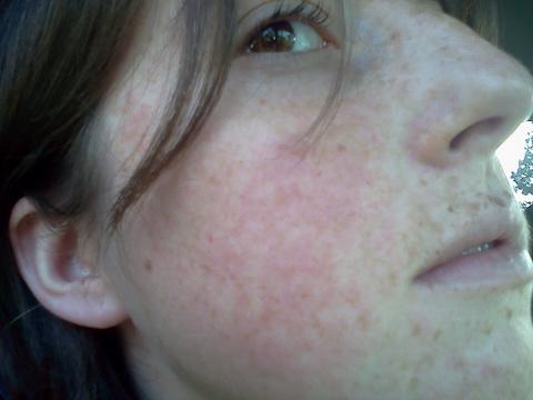 SZIMPATIKA - Arcpír és ízületi fájdalom  a szisztémás lupusz jelei 9874d8b0ce