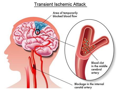 Az átmeneti iszkémiás roham tünetei és kezelése - Tumor May