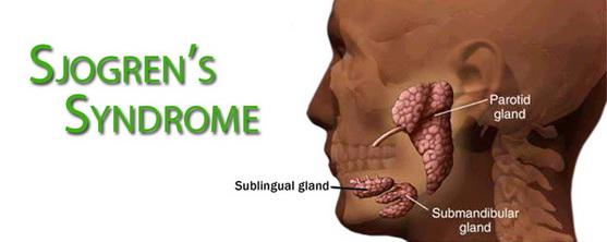 hogyan lehet fogyni a sjogren-szindrómán montelukast fogyás