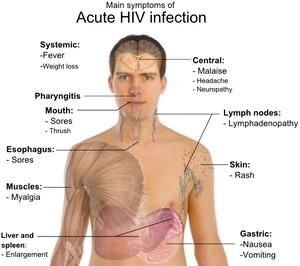 a fogyás a hiv tünete rachel coleman fogyás