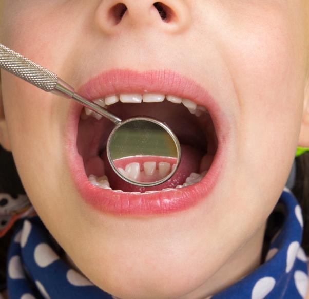 a fogszuvasodás fogyást okoz