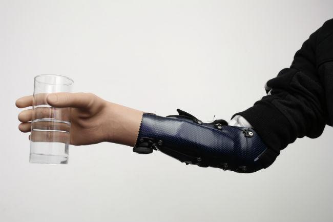 Milorad Marinkovic egy üveget tart új bionikus kezével. (Fotó:hirado.hu/AFP)