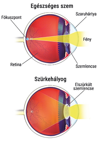 Helyreáll-e a látás a szürkehályog eltávolítása után. Gyümölcs a látás javításához