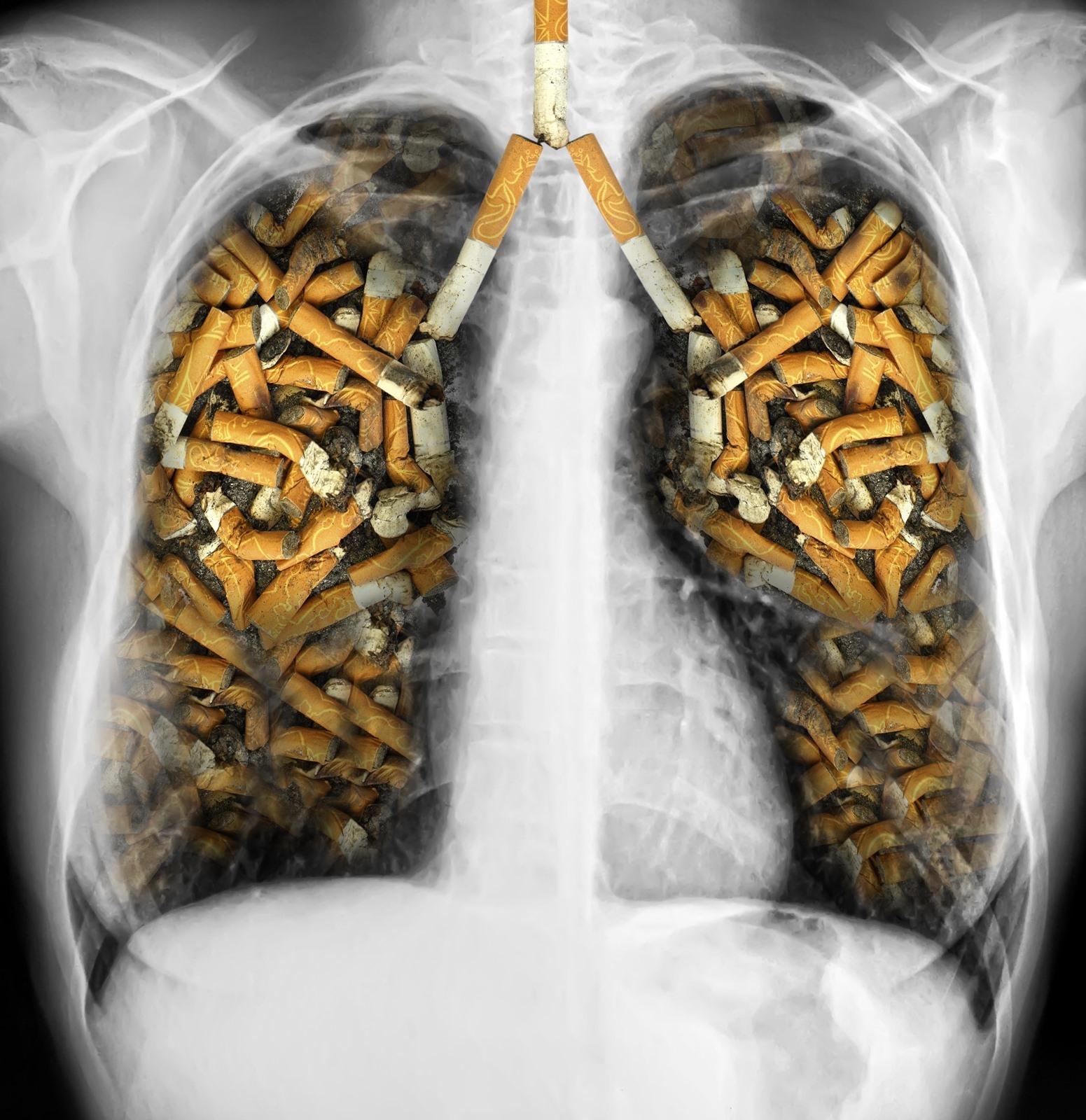 dohányzás elleni nemzetközi nap