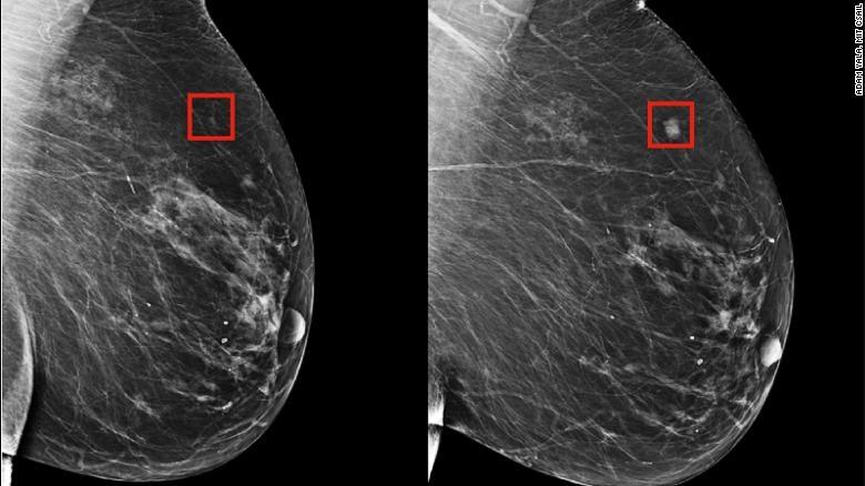 Az MIT kutatói által fejlesztett algoritmus képes a mellrák kockázatát felismerni a nőknél, ezzel elősegítve a korai kezelést