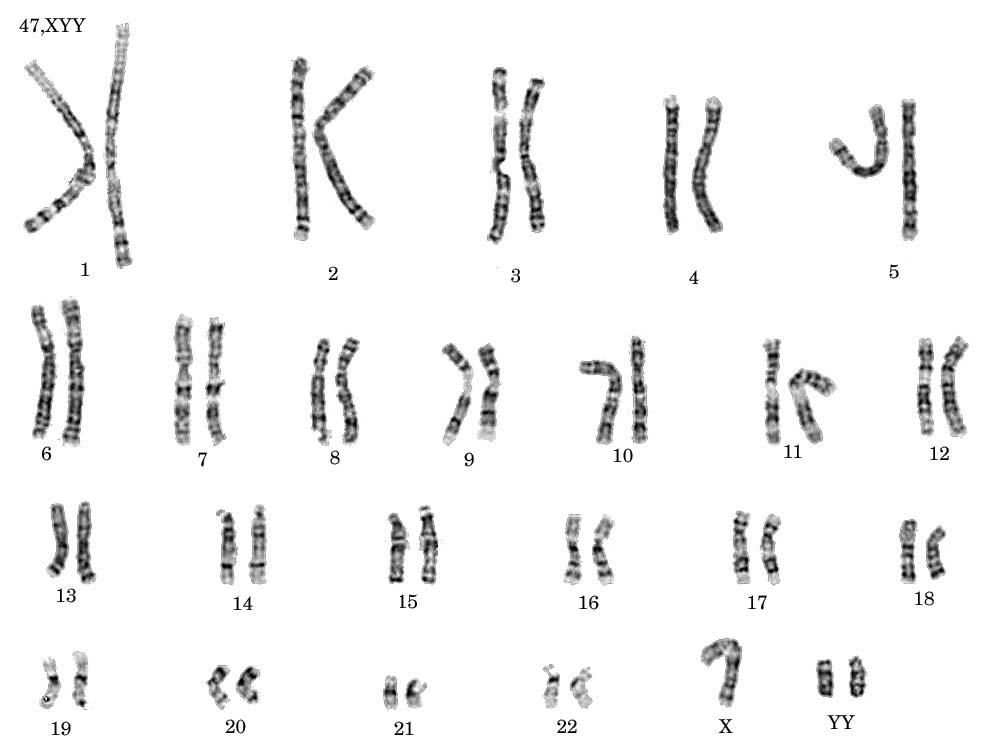 Dupla Y-szindróma kariotípus