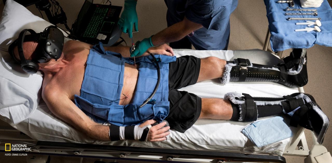 Brent Bauer fájdalmait a Snow World virtuálisvalóság-játék csillapítja a műtét közben.